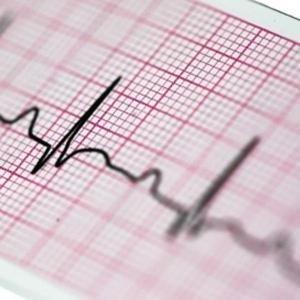 Papier EKG do Lifepak 108x25