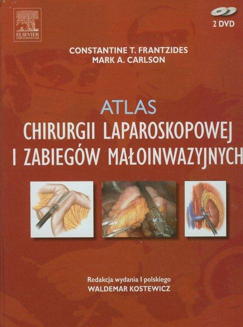 Atlas chirurgii laparoskopowej i zabiegów małoinwazyjnych