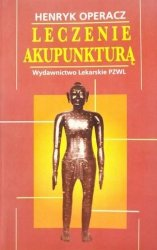 Henryk Operacz • Leczenie akupunkturą