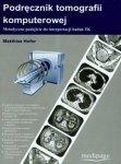 Podręcznik tomografii komputerowej Metodyczne podejście do interpretacji badań TK