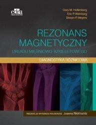 Rezonans magnetyczny układu mięśniowo-szkieletowego Diagnostyka różnicowa