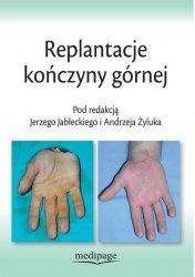Replantacje kończyny górnej