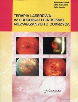 Terapia laserowa w chorobach siatkówki niezwiązanych z cukrzycą