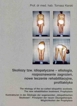 Skoliozy tzw idiopatyczne etiologia rozpoznawanie zagrożeń..