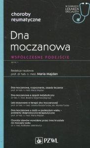 Dna moczanowa Współczesne podejście W gabinecie lekarza specjalisty