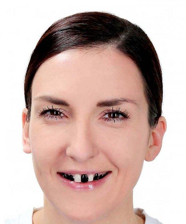 Lakier do zębów - czarny 12 ml