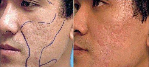 Revitol Scar Cream 60ml - innowacyjny krem redukujący blizny na całym ciele