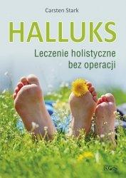 Halluks Leczenie holistyczne bez operacji